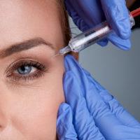 Wypełnianie drobnych zmarszczek okolicy twarzy lub szyi (1 ml)