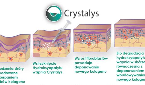 crystalis-zdj-2.png
