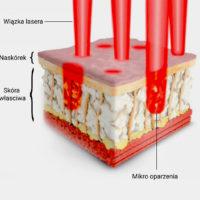 Laser frakcyjny – bezpieczna metoda leczenia